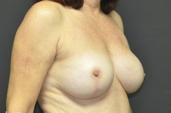 Breast Reconstruction Andrew Smith, MD, FACS, Plastic and Reconstructive Surgery Before & After | Patient 25 Photo 3