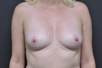 Breast Reconstruction Andrew Smith, MD, FACS, Plastic and Reconstructive Surgery Before & After | Patient 26 Photo 0 Thumb