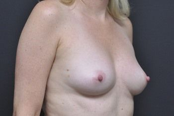 Breast Reconstruction Andrew Smith, MD, FACS, Plastic and Reconstructive Surgery Before & After | Patient 26 Photo 2 Thumb