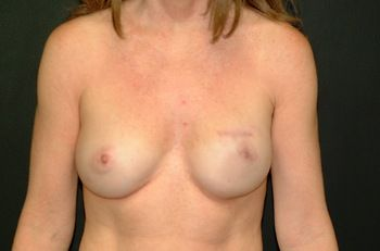 Breast Reconstruction Andrew Smith, MD, FACS, Plastic and Reconstructive Surgery Before & After | Patient 28 Photo 1 Thumb