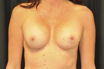 Breast Reconstruction Andrew Smith, MD, FACS, Plastic and Reconstructive Surgery Before & After | Patient 31 Photo 0 Thumb
