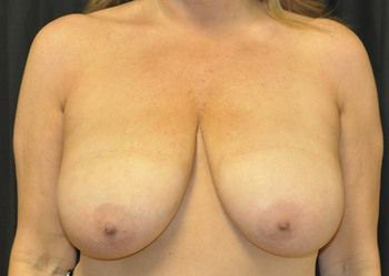 Breast Reduction Andrew Smith, MD, FACS, Plastic and Reconstructive Surgery Before & After | Patient 06 Photo 0