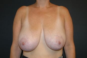 Breast Reduction Andrew Smith, MD, FACS, Plastic and Reconstructive Surgery Before & After | Patient 08 Photo 0