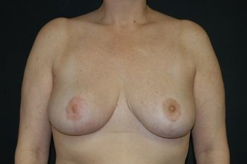 Breast Reduction Andrew Smith, MD, FACS, Plastic and Reconstructive Surgery Before & After | Patient 08 Photo 1