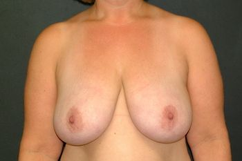 Breast Reduction Andrew Smith, MD, FACS, Plastic and Reconstructive Surgery Before & After | Patient 09 Photo 0