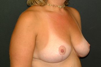Breast Reduction Andrew Smith, MD, FACS, Plastic and Reconstructive Surgery Before & After | Patient 09 Photo 3