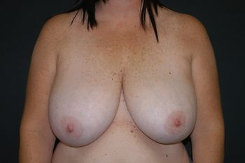 Breast Reduction Andrew Smith, MD, FACS, Plastic and Reconstructive Surgery Before & After | Patient 11 Photo 0