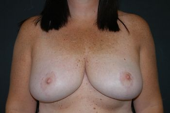 Breast Reduction Andrew Smith, MD, FACS, Plastic and Reconstructive Surgery Before & After | Patient 11 Photo 1