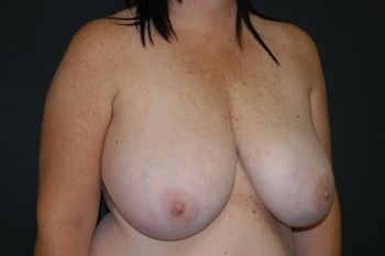 Breast Reduction Andrew Smith, MD, FACS, Plastic and Reconstructive Surgery Before & After | Patient 11 Photo 2