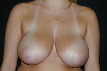 Breast Reduction Before & After Patient 12