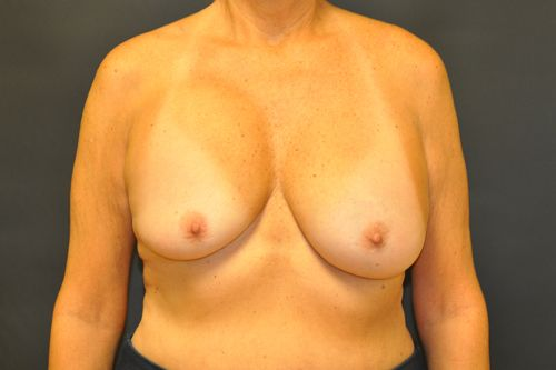 Breast Revision Andrew Smith, MD, FACS, Plastic and Reconstructive Surgery Before & After | Patient 01 Photo 0 Thumb