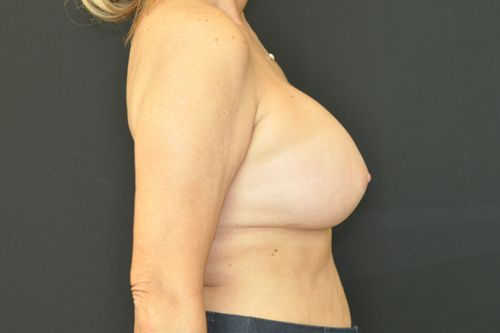 Breast Revision Andrew Smith, MD, FACS, Plastic and Reconstructive Surgery Before & After | Patient 01 Photo 3 Thumb