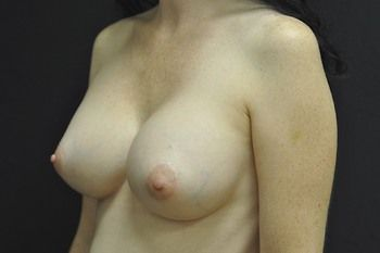 Breast Revision Before & After Patient 02