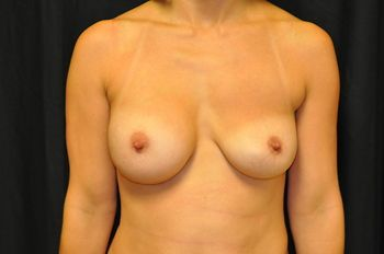 Breast Revision Andrew Smith, MD, FACS, Plastic and Reconstructive Surgery Before & After | Patient 03 Photo 0 Thumb
