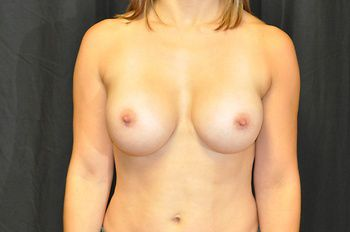 Breast Revision Andrew Smith, MD, FACS, Plastic and Reconstructive Surgery Before & After | Patient 03 Photo 1 Thumb