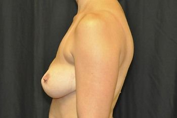 Breast Revision Andrew Smith, MD, FACS, Plastic and Reconstructive Surgery Before & After | Patient 03 Photo 2 Thumb