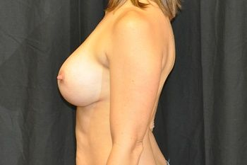 Breast Revision Andrew Smith, MD, FACS, Plastic and Reconstructive Surgery Before & After | Patient 03 Photo 3 Thumb