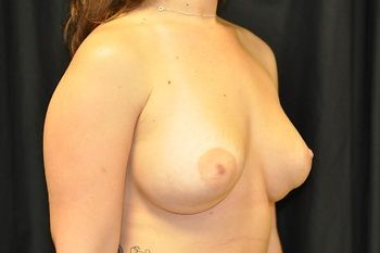 Breast Revision Andrew Smith, MD, FACS, Plastic and Reconstructive Surgery Before & After | Patient 04 Photo 0