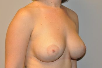 Breast Revision Andrew Smith, MD, FACS, Plastic and Reconstructive Surgery Before & After | Patient 04 Photo 1