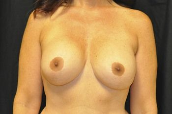 Breast Revision Andrew Smith, MD, FACS, Plastic and Reconstructive Surgery Before & After | Patient 05 Photo 0 Thumb