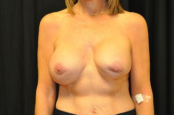 Breast Revision Andrew Smith, MD, FACS, Plastic and Reconstructive Surgery Before & After | Patient 06 Photo 0 Thumb