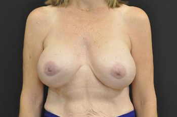 Breast Revision Andrew Smith, MD, FACS, Plastic and Reconstructive Surgery Before & After | Patient 06 Photo 1 Thumb