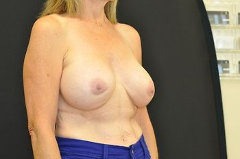 Breast Revision Andrew Smith, MD, FACS, Plastic and Reconstructive Surgery Before & After | Patient 06 Photo 3 Thumb