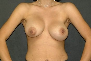 Breast Revision Andrew Smith, MD, FACS, Plastic and Reconstructive Surgery Before & After | Patient 07 Photo 0 Thumb
