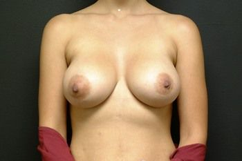 Breast Revision Andrew Smith, MD, FACS, Plastic and Reconstructive Surgery Before & After | Patient 07 Photo 1 Thumb