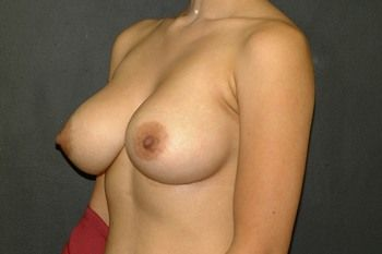 Breast Revision Andrew Smith, MD, FACS, Plastic and Reconstructive Surgery Before & After | Patient 07 Photo 3 Thumb