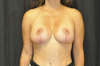 Breast Revision Andrew Smith, MD, FACS, Plastic and Reconstructive Surgery Before & After | Patient 08 Photo 1 Thumb