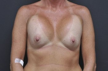 Breast Revision Andrew Smith, MD, FACS, Plastic and Reconstructive Surgery Before & After | Patient 09 Photo 0 Thumb