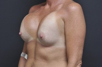 Breast Revision Andrew Smith, MD, FACS, Plastic and Reconstructive Surgery Before & After | Patient 09 Photo 2 Thumb