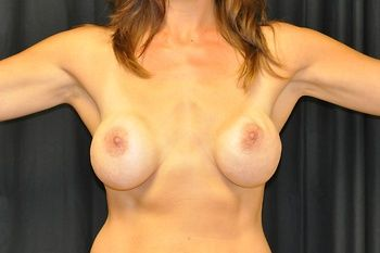 Breast Revision Andrew Smith, MD, FACS, Plastic and Reconstructive Surgery Before & After | Patient 10 Photo 0 Thumb
