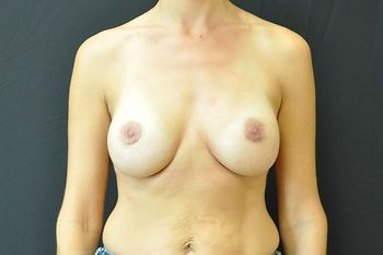 Breast Revision Andrew Smith, MD, FACS, Plastic and Reconstructive Surgery Before & After | Patient 10 Photo 1 Thumb