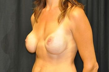 Breast Revision Andrew Smith, MD, FACS, Plastic and Reconstructive Surgery Before & After | Patient 10 Photo 2 Thumb