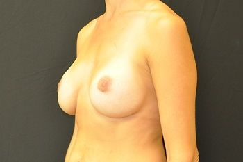 Breast Revision Andrew Smith, MD, FACS, Plastic and Reconstructive Surgery Before & After | Patient 10 Photo 3 Thumb