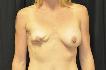 Breast Revision Andrew Smith, MD, FACS, Plastic and Reconstructive Surgery Before & After | Patient 11 Photo 0 Thumb