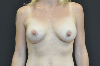 Breast Revision Andrew Smith, MD, FACS, Plastic and Reconstructive Surgery Before & After | Patient 11 Photo 1 Thumb