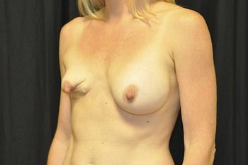 Breast Revision Andrew Smith, MD, FACS, Plastic and Reconstructive Surgery Before & After | Patient 11 Photo 2 Thumb