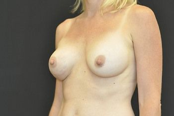 Breast Revision Andrew Smith, MD, FACS, Plastic and Reconstructive Surgery Before & After | Patient 11 Photo 3 Thumb