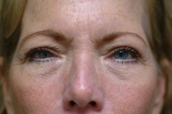 Eyelid Blepharoplasty Before & After Photo Patient 01 Thumbnail