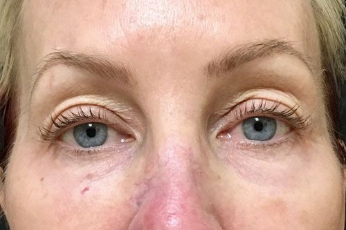 Eyelid Blepharoplasty Before & After Photo Patient 03 Thumbnail