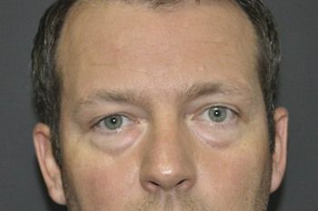 Eyelid Blepharoplasty Before & After Photo Patient 04 Thumbnail