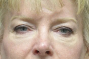 Eyelid Blepharoplasty Before & After Photo Patient 06 Thumbnail