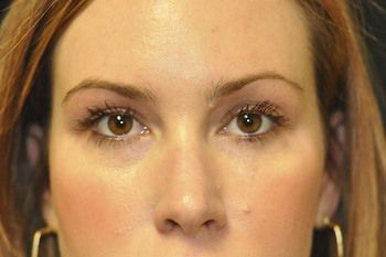 Eyelid Blepharoplasty Before & After Photo Patient 08 Thumbnail