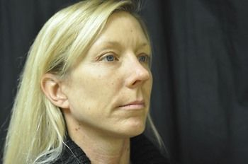 Facelift Andrew Smith, MD, FACS, Plastic and Reconstructive Surgery Before & After | Patient 04 Photo 1 Thumb