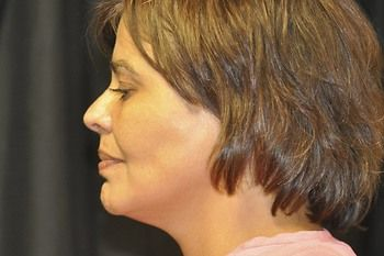 Neck Lift Before & After Patient 01